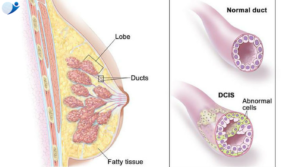 DCIS | Breast Cancer Treatment in Bangalore