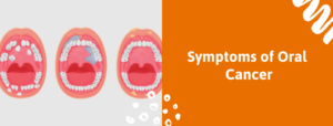 Symptoms Of Oral Cancer | Oral Cancer Treatment In Bangalore